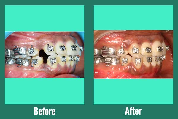 Braces Used With Tooth Extractions