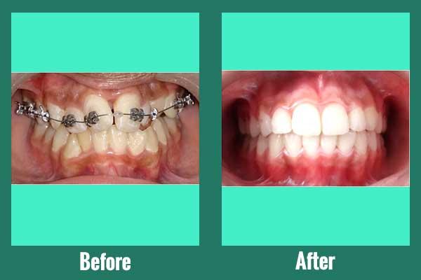 Self Ligation braces for smile correction
