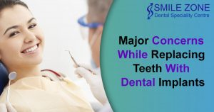 Major Concerns While Replacing Teeth With Dental Implants