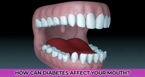 How can diabetes affect your mouth?