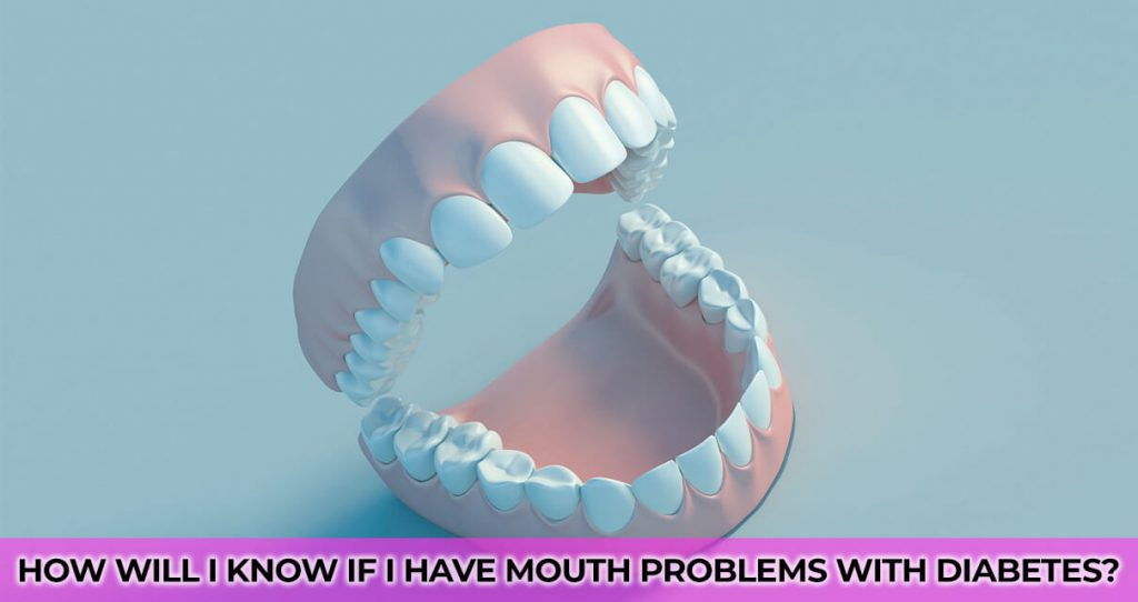 How will I know if I have mouth problems with diabetes?