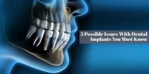 5 Possible Issues With Dental Implants You Must Know
