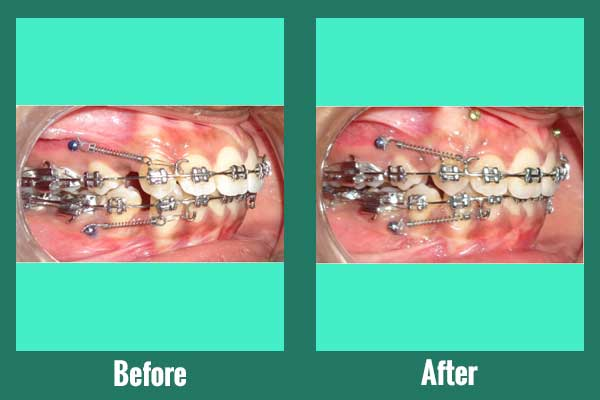 Orthodontic micro implants aided treatment