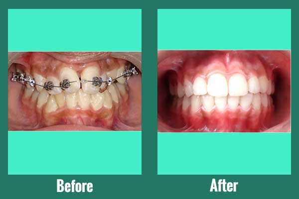 Self Ligation braces for smile correction