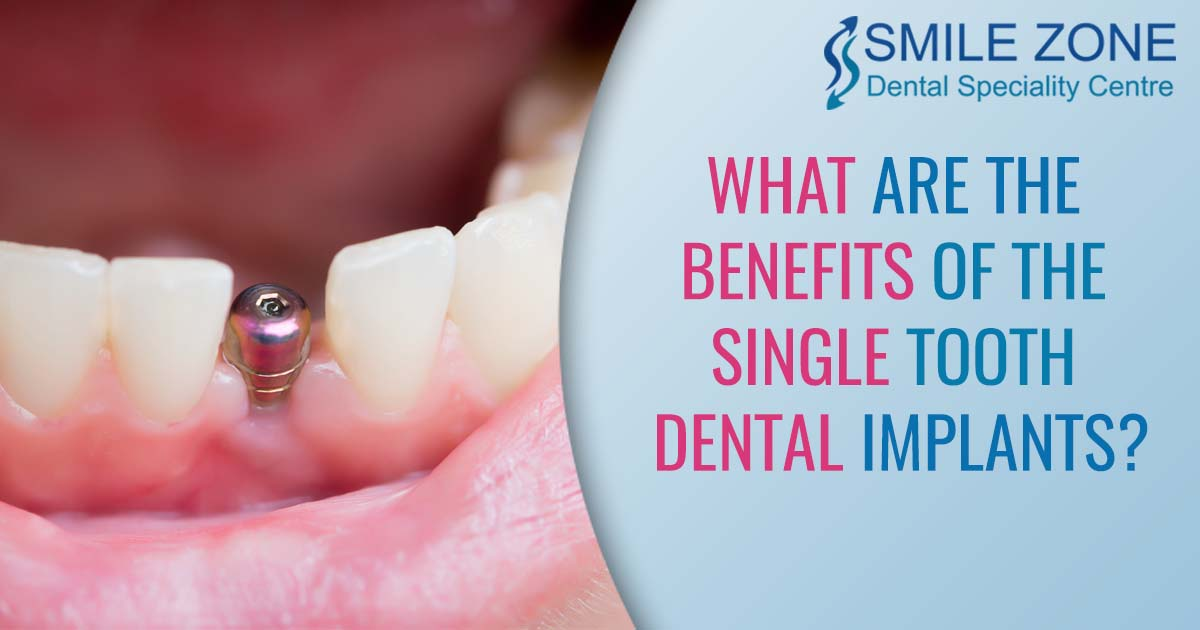 what are the benefits of the single tooth dental implants