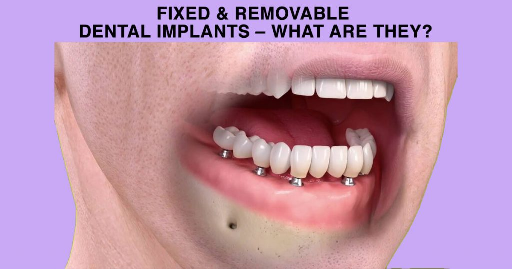 Fixed & Removable Dental Implants – what are they?