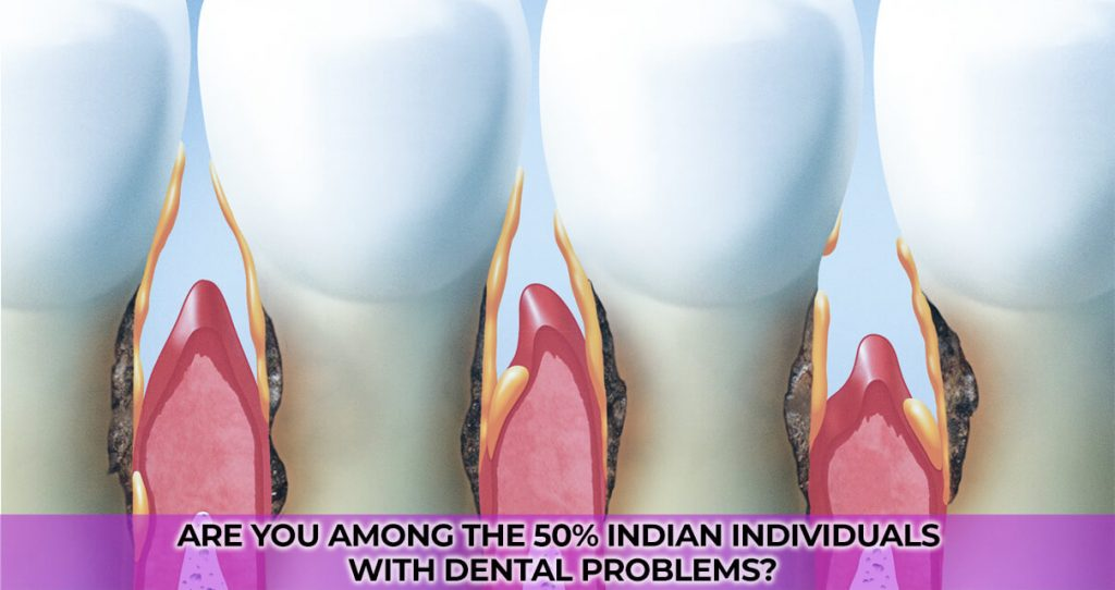 Are you among the 50% Indian Individuals with Dental problems?