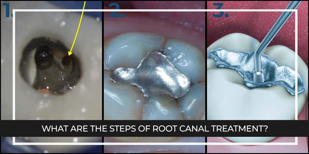 What are the steps of Root Canal Treatment?