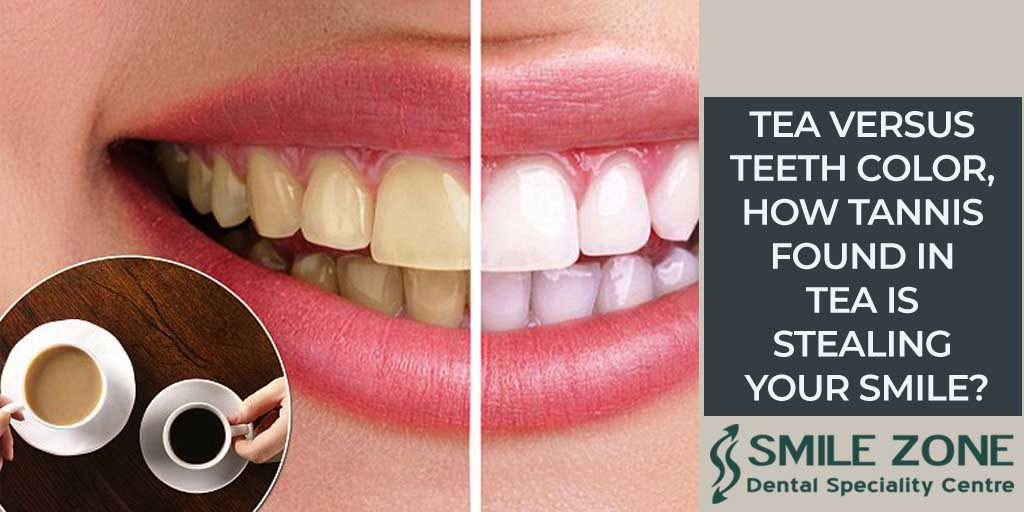 Tea versus teeth color, how tannis found in tea is stealing your smile?