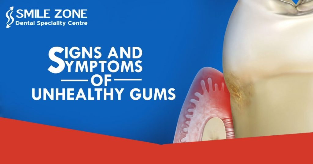 Signs And Symptoms of Unhealthy Gums