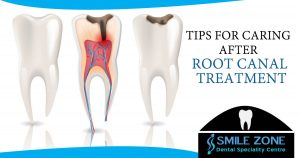 Tips for caring after root canal treatment