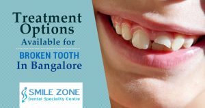 Treatment Options Available for Broken Tooth In Bangalore