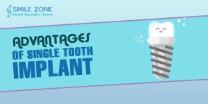 Advantages of Single Tooth Implant