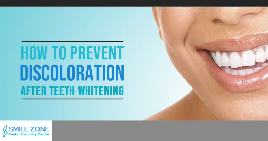 how to prevent discoloration after teeth whitening
