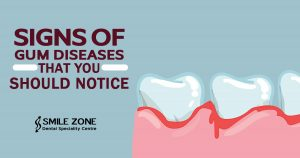 Signs of Gum Diseases that You Should Notice