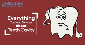 Everything You Need To Know About Teeth Cavity