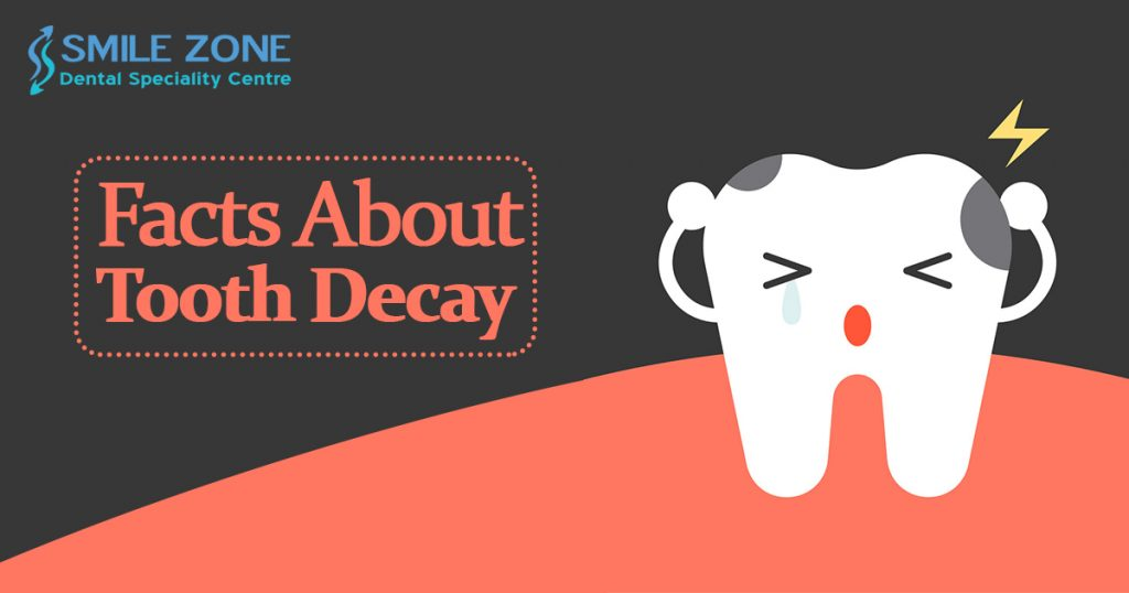 Facts About Tooth Decay