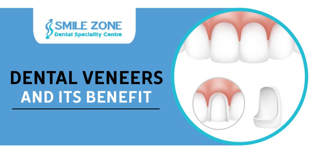 Dental Veneers and its benefit copy