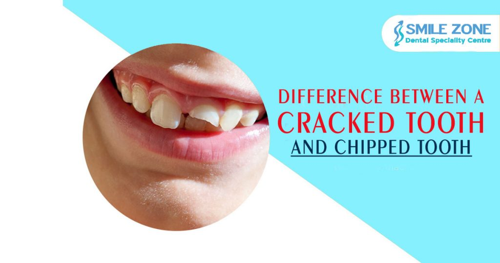 Difference-between-a-Cracked