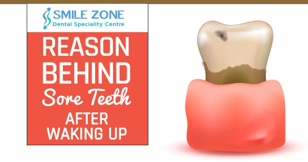Reason behind Sore Teeth After waking up