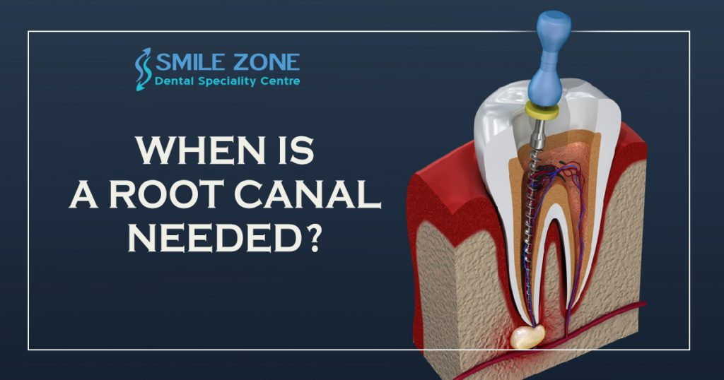 When Is A Root Canal Needed