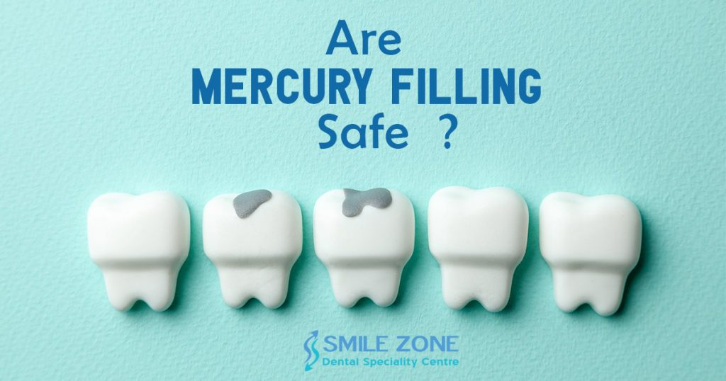 Are Mercury Filling Safe