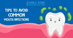Tips To Avoid Common Mouth Infections