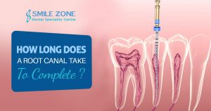How Long Does A Root Canal Take To Complete