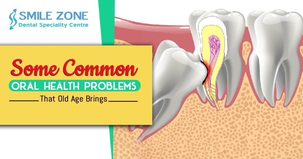 Some Common Oral Health Problems that old Age Brings