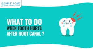 What to Do when tooth hurts after root canal
