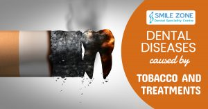 Dental diseases caused by tobacco and treatments