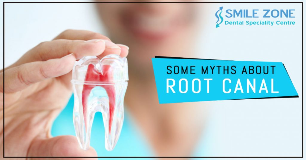 Some Myths about Root canal