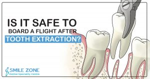 Is it safe to board a flight after tooth extraction