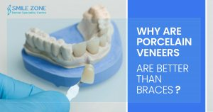 Why Are porcelain veneers are better than braces