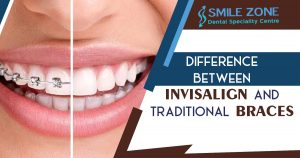 difference between Invisalign and traditional braces