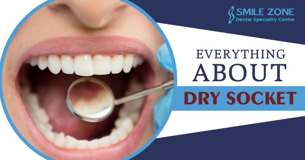 Everything about Dry Socket