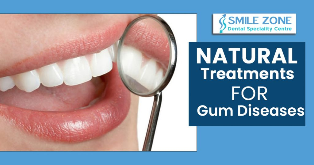 Natural treatments for gum diseases