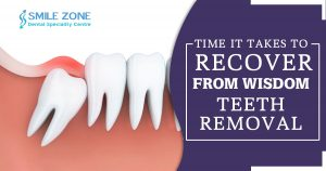 Time it takes to recover from wisdom teeth removal