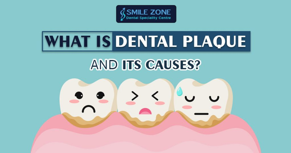 What is dental plaque and its causes