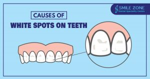 Causes of white spots on teeth