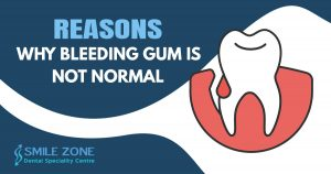 Reasons Why bleeding gum is not normal