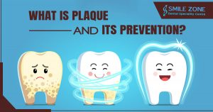 What is plaque and its prevention
