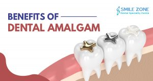 Benefits of Dental Amalgam