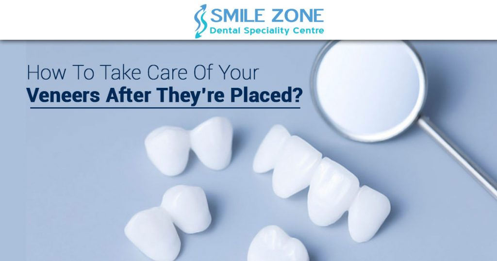 How to take care of your veneers after they're placed