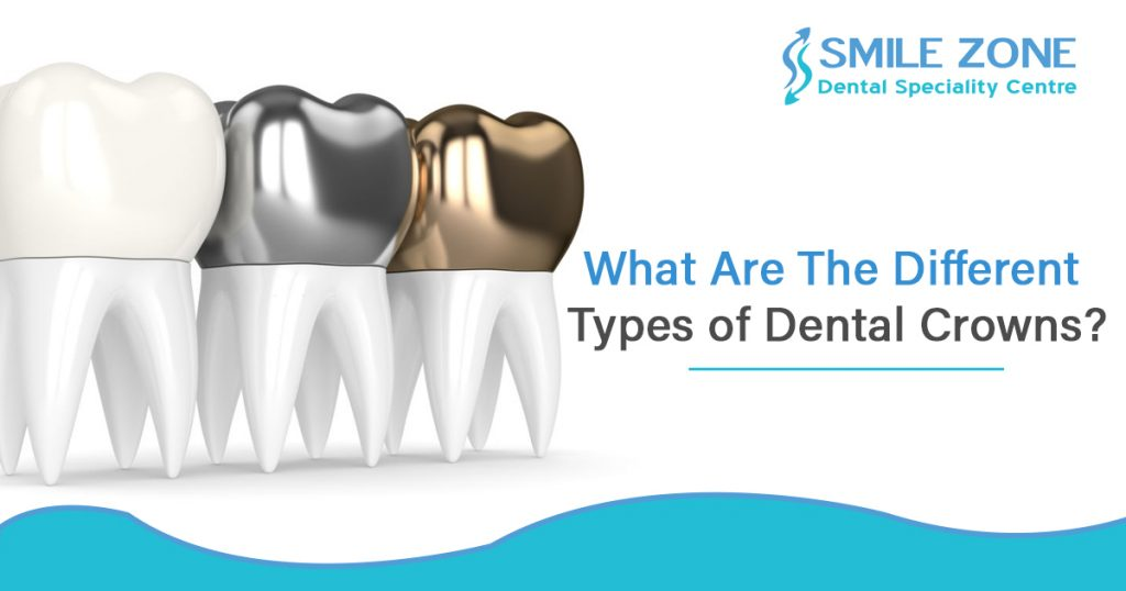 What are the different Types of dental crowns