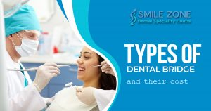 What is a Dental Bridge and explain types as well as the cost of dental bridges