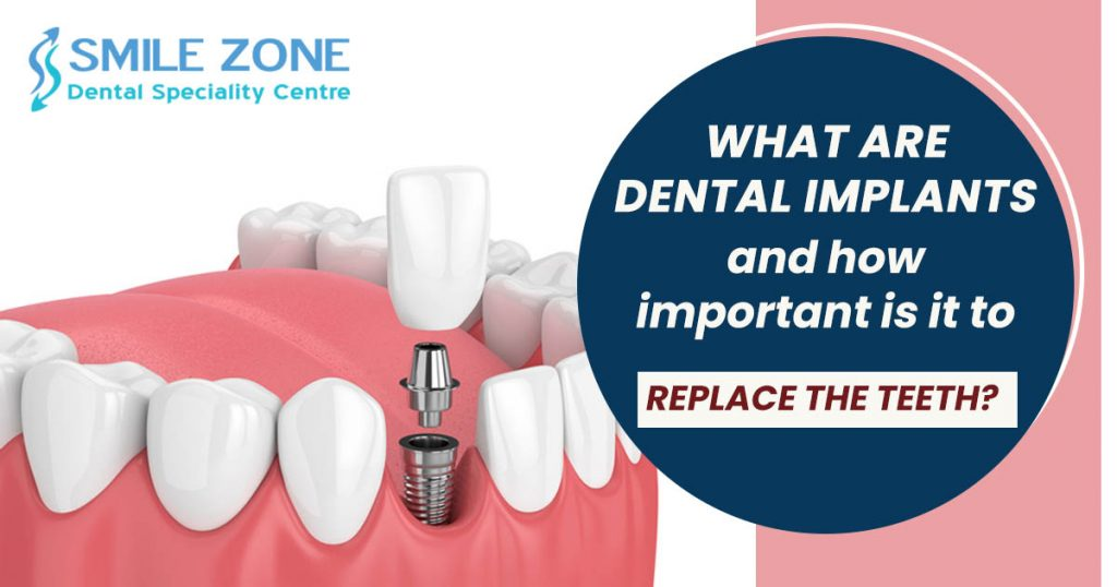 What are Dental Implants and how important is it to replace the teeth