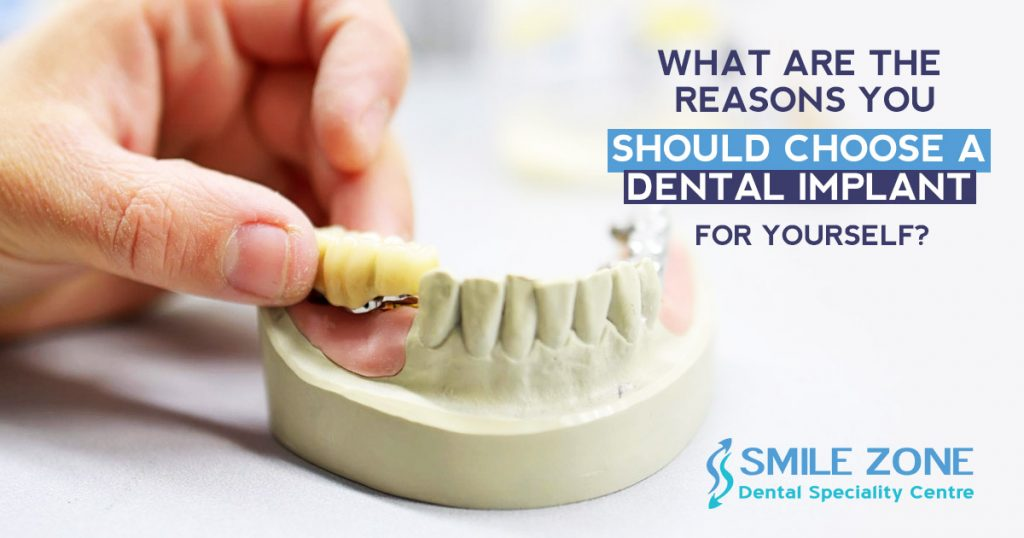 What are the reasons you should choose a dental implant for yourself