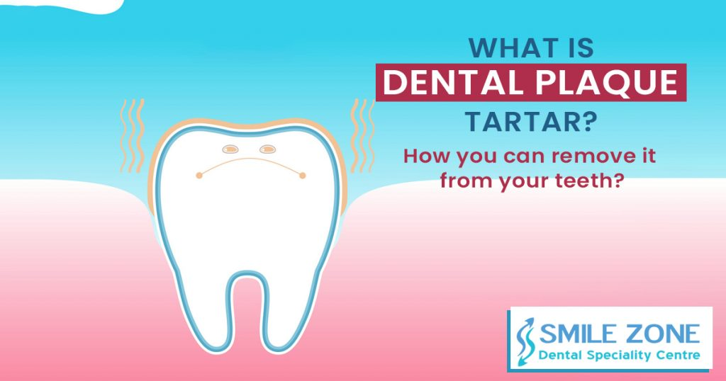 What is dental plaque, tartar