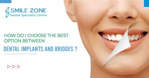 How do I choose the best option between dental implants and bridges